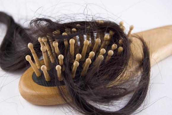 Сильно падают волосы